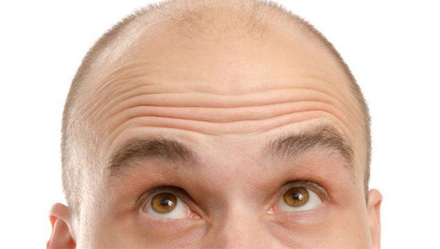FUE Yöntemi ile Saç Ekimi