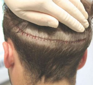 FUT Yöntemi ile Saç Ekimi